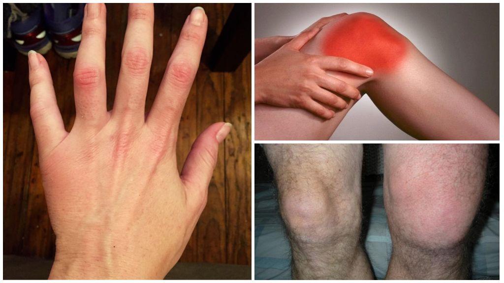 Почему немеет нога выше коленау взрослого человека