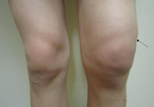 Боль в колене и шарик