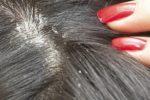 Шелушение кожи головы бывает вызвано себореей