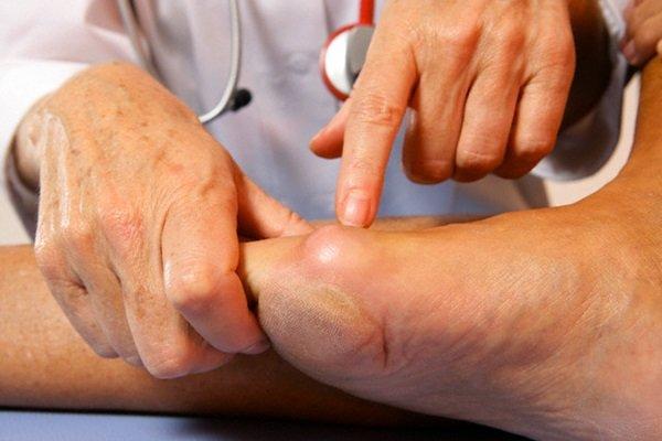 К какому врачу идти если болит палец на ноге около ногтя thumbnail
