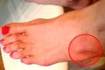 Шишка на ноге под кожей бывает вызвана разными причинами
