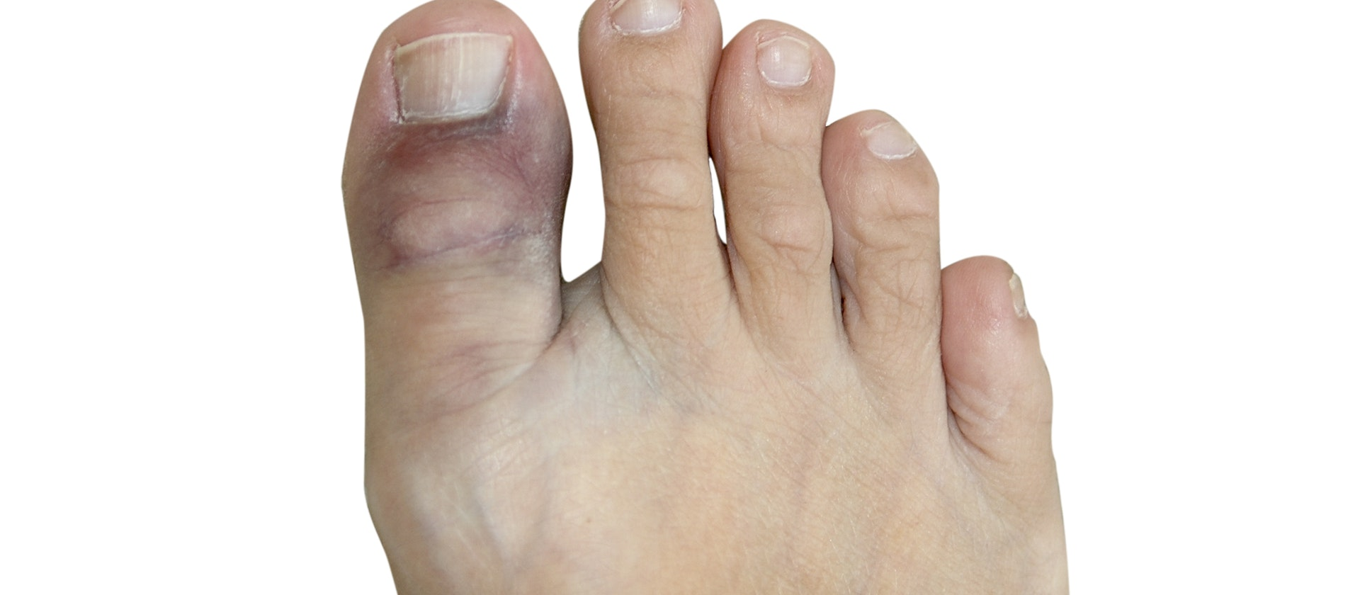 При посиневшем пальце нужно обратиться к врачу