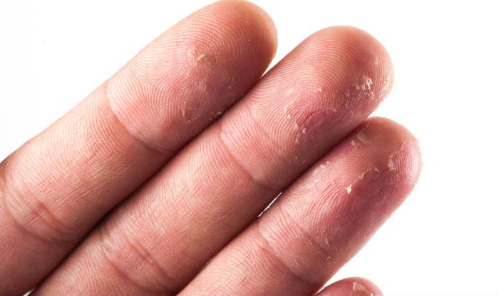 Сухая кожа на кончиках пальцев доставляет дискомфорт