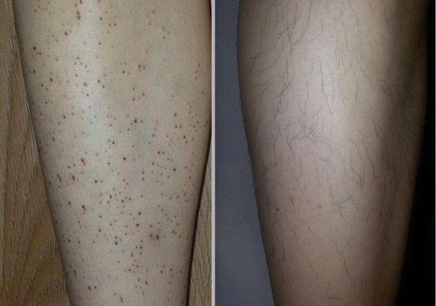 Обычно черные точки на ногах появляются после эпиляции