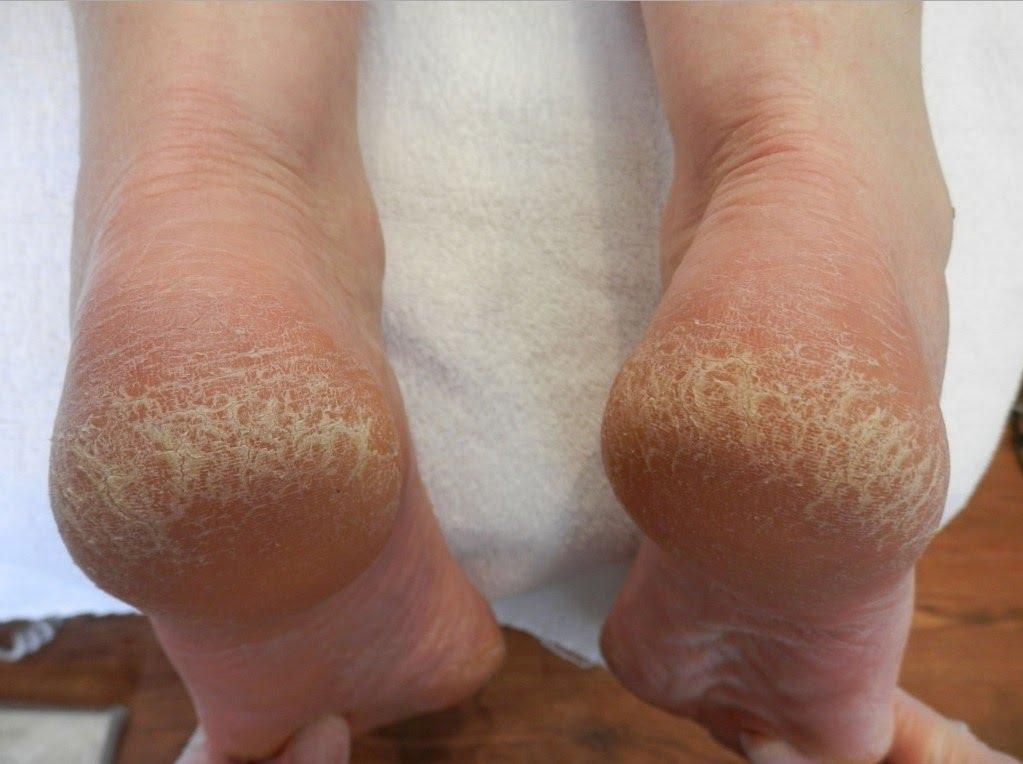 Грибок - одна из причин появления трещинок