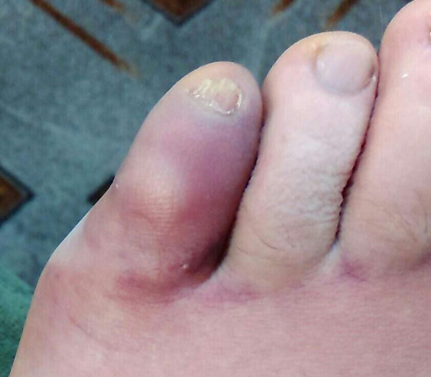 Посинел и болит палец на ноге лечение thumbnail