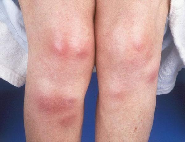 Узловатая эритема обычно локализуется на ногах