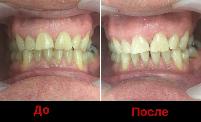 Ультразвуковая чистка зубов при камневых отложениях